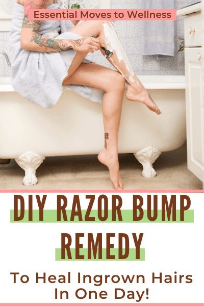Annoying razor bumps getting in the way of your summer? This DIY razor bump remedy will take care of that in no time. With only 2 ingredients! #razorbumpremedy #diyrazorbumpremedy #naturalliving #diyremedies